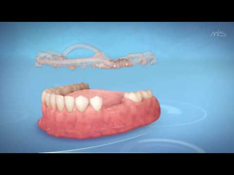 MIS MGUIDE – Step-by-Step Guided Implant Placement Procedure